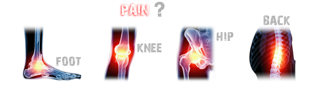 3 pain foot knee hip back
