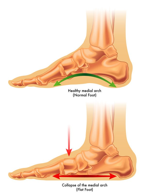 Flat Feet - Step Forward SA Blog