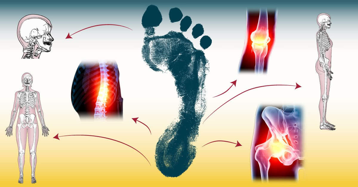 What your Footprint tells about your Health and Posture